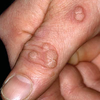 warts on hands come and go