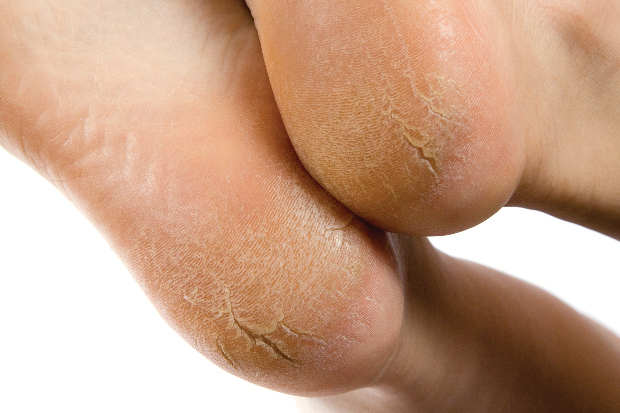 How To Treat Clients With Heel Fissures