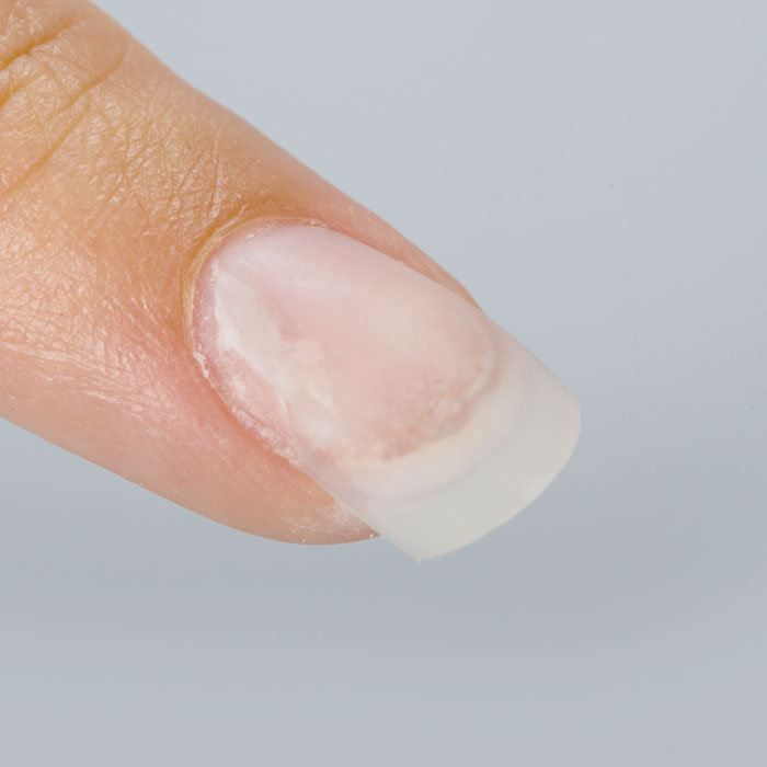 Four Nail Experts Weigh In On How To Stop Lifting Nailpro